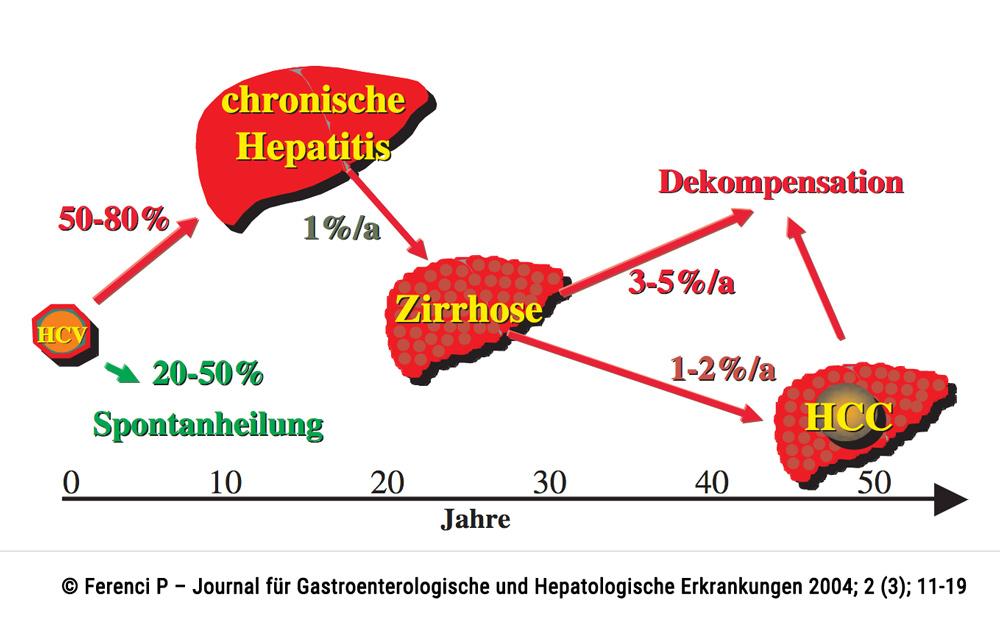 Verlauf der Hepatitis C: Mehrheitlich ist der Verlauf chronisch und führt meist zur Zirrhose