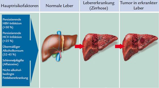 Leberzirrhose: Risikofaktoren und die Entstehung