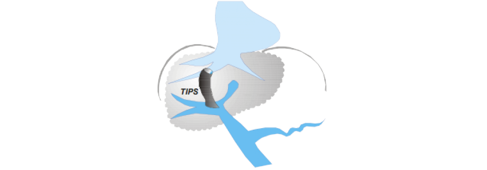 Schematische Darstellung des transjugulären, intrahepatischen portosystemischen Shunts (TIPS). Eine nicht-operative Methode zur Therapie der portalen Hypertension.